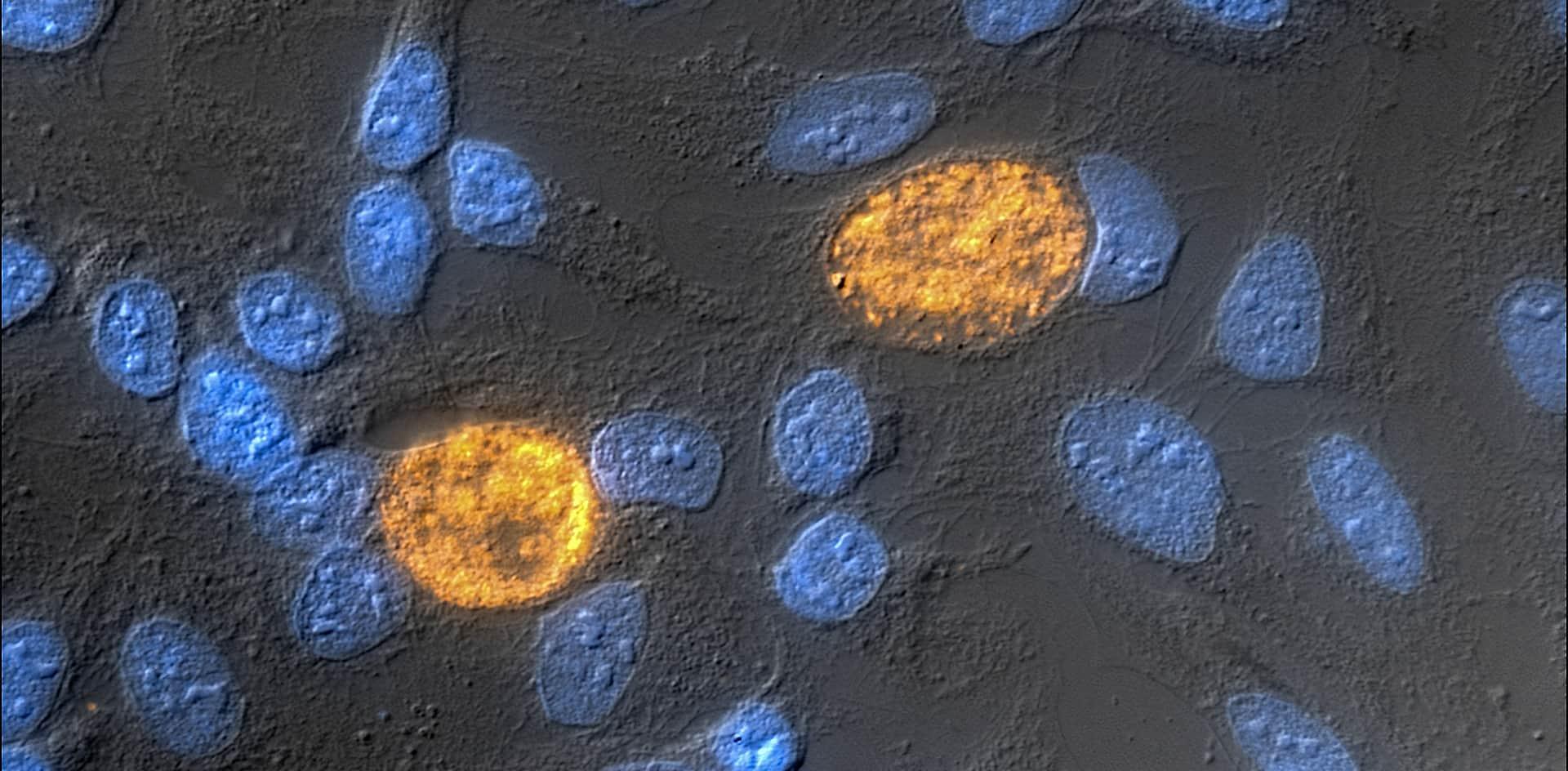 Detectan un gen clave que permitiría a la clamidia permanecer en el cuerpo sin ser detectada