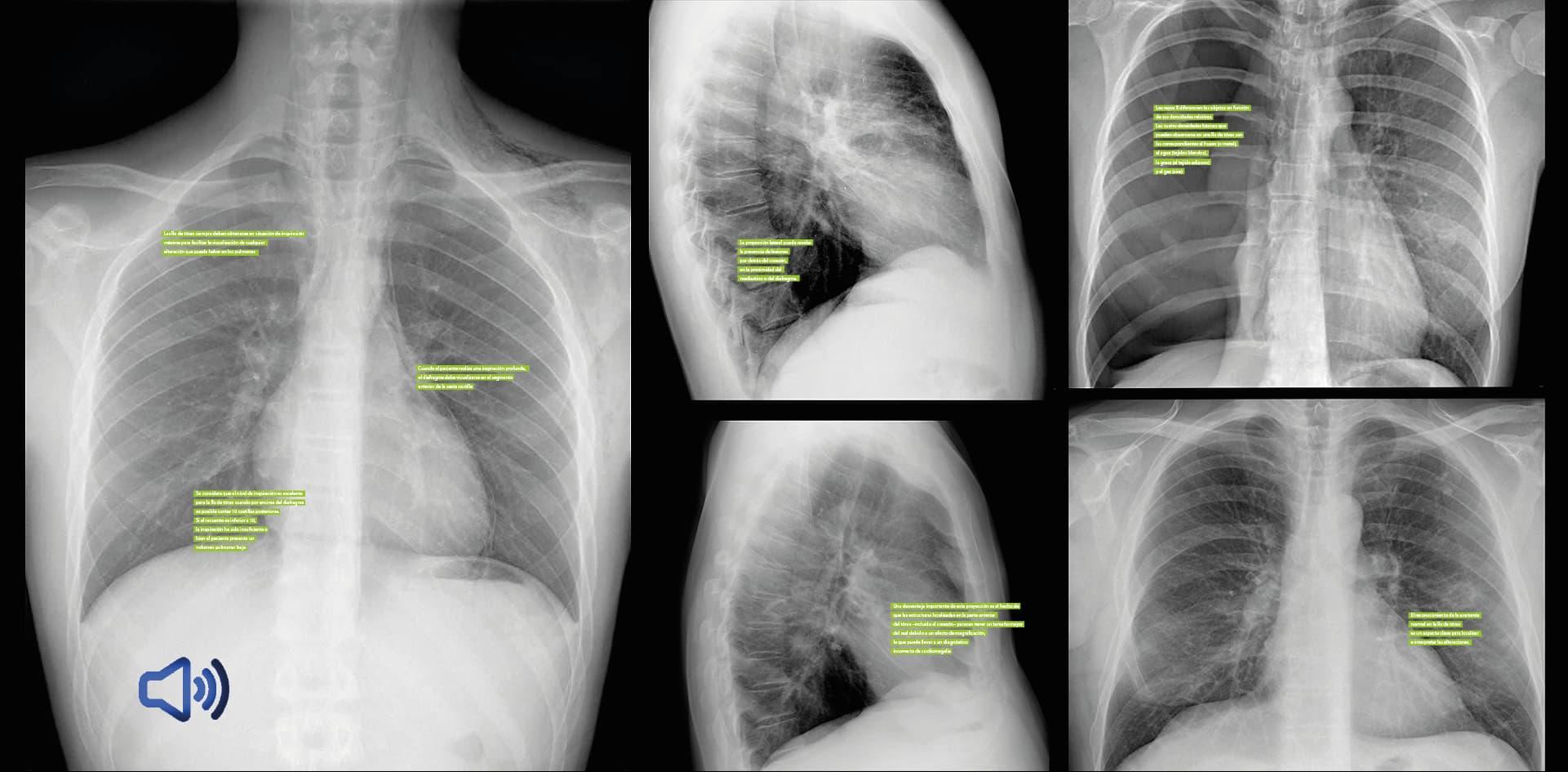 Con inteligencia artificial, logran generar automáticamente informes médicos a partir de radiografías