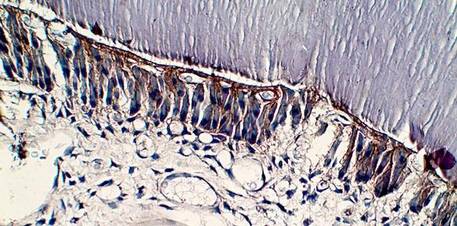 Identifican un proceso biológico clave en el desarrollo de una enfermedad bucal