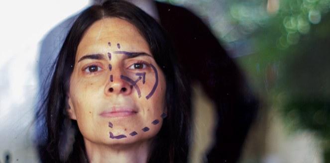 Cirugías estéticas, de la práctica médica a la imposición social